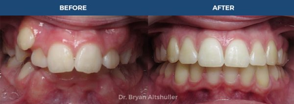 DR BRYAN ALTSHULLER Orthodontic Clinic / Before After
