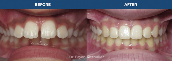Clear braces / clearcorrect braces before and after image