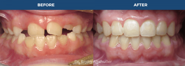 Metal braces / metal traditional braces before and after image
